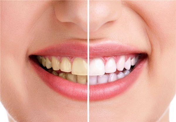 دلیل اصلی زرد شدن رنگ دندان چیست؟