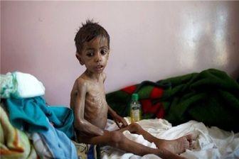 دیفتری جان 141 تن در یمن را گرفت