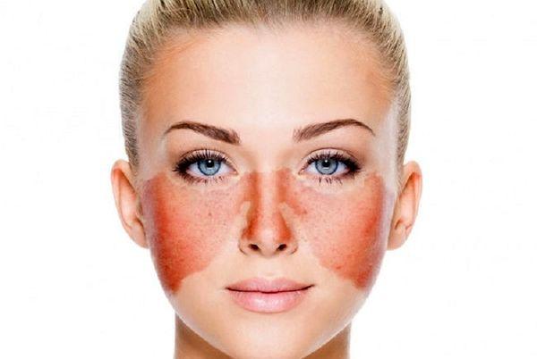 ارتباط کبد با پوست صورت چیست؟