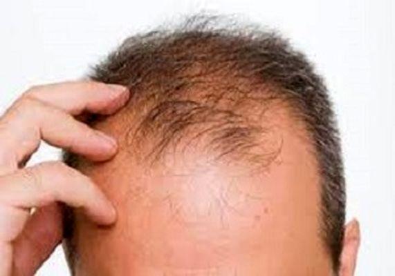 ارتباط مستقیم ریزش مو با صبحانه!