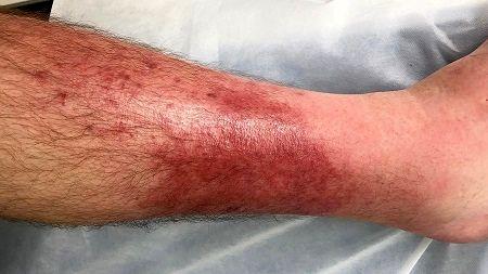 درمان خانگی رفع لکه های پوست پا, لکه های پوست پا, پوست پا