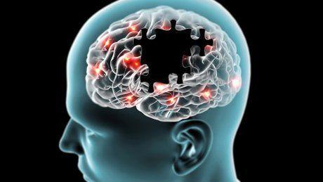 ادعای درمان آلزایمر با مصرف آسپرین