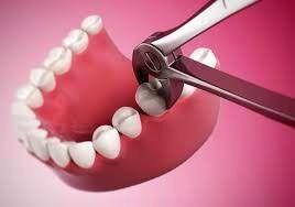 مرگ بعد از کشیدن ۵ دندان!