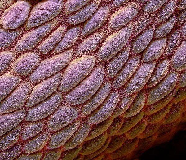 این میکروگراف که می بینید روده بزرگ انسان هست + عکس