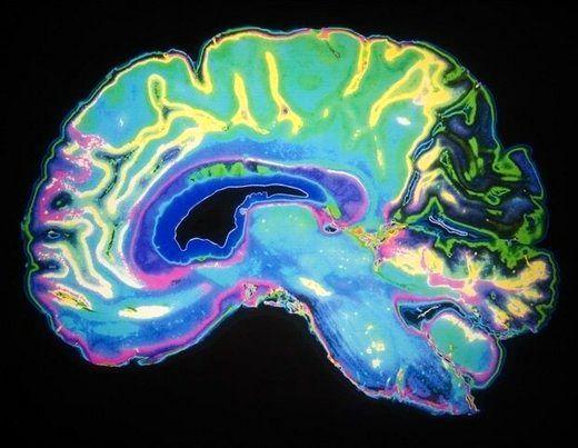 شناسایی پروتئینی که به تنظیم حافظه کمک میکند