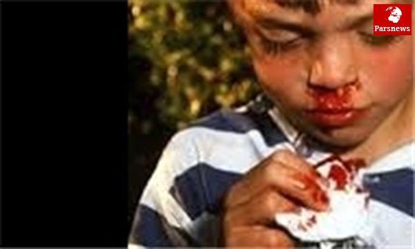خونریزی بینی در پسرها خطرناک است