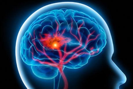 سکته مغزی قابل درمان است؟