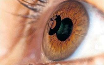 10 اشتباه که چشمتان را ضعیف میکند