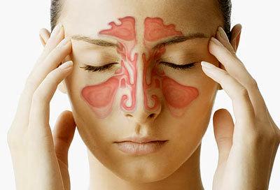 راه های آسان برای درمان دردهای سینوسی