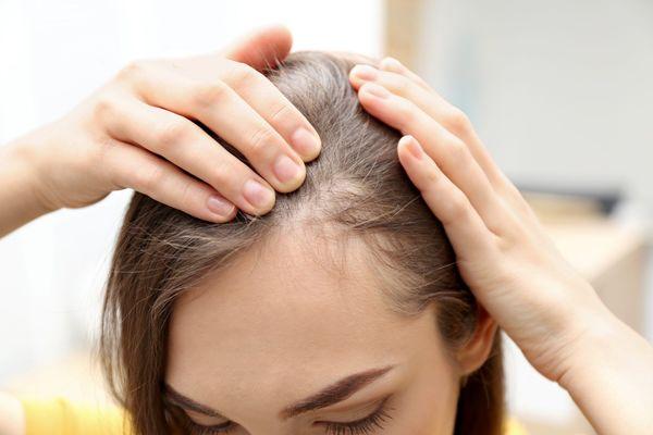 آیا شامپوهای ضد ریزش واقعاً از ریزش مو جلوگیری می کنند؟