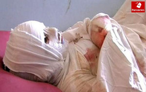 انفجار نارنجک در دست جوان ۲۴ ساله