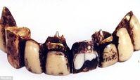 دندان هیتلر راز مرگش را فاش کرد