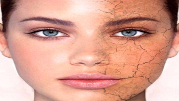 چگونه از خشک شدن «پوست» جلوگیری کنیم؟