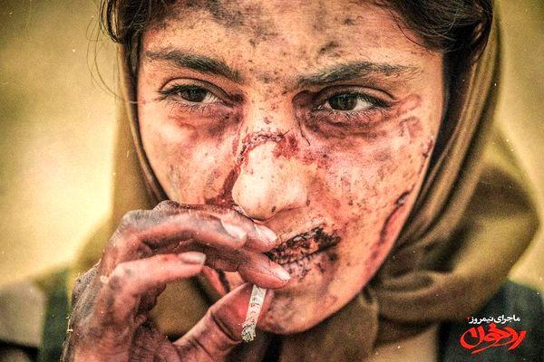 صورت زخمی و داغون شده هستی مهدوی + عکس
