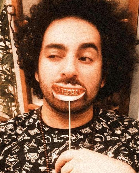 دندان های مصنوعی هومن گامنو + عکس