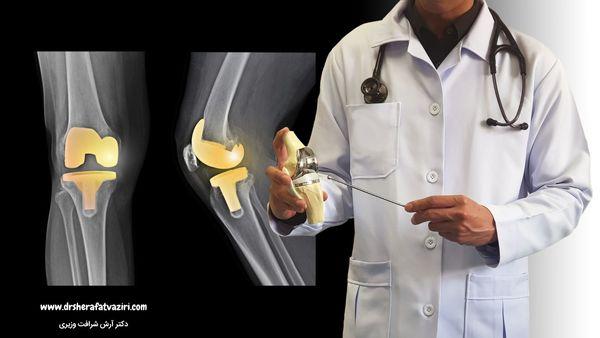همه چیز درباره جراحی تعویض مفصل زانو از زبان دکتر شرافت وزیری متخصص جراحی زانو