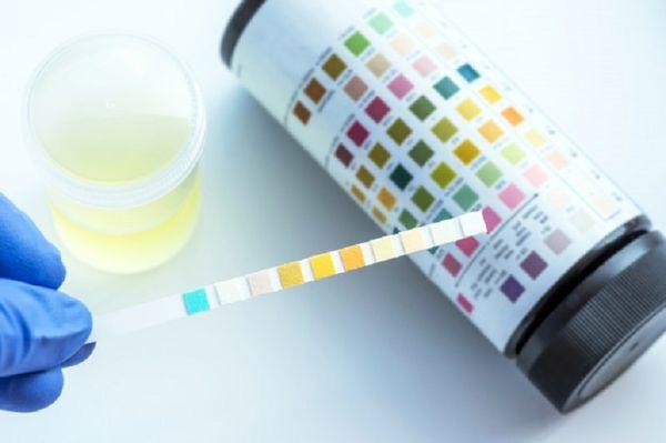 پزشکان از رنگ ادرار چه می فهمند؟