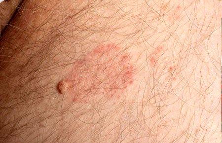 لکه های قهوه ای روی پوست پا, لکه های قرمز روی پوست, لکه های سفید روی پوست پا