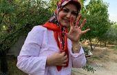 دستان خونی خانم مجری در طبیعت + عکس