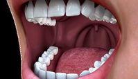 سفید کردن دندان با یک روش موثر و بدون ضرر!
