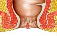 بررسی عوامل و بیماری های خونریزی از مقعد