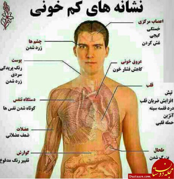 علائم و درمان کم خونی
