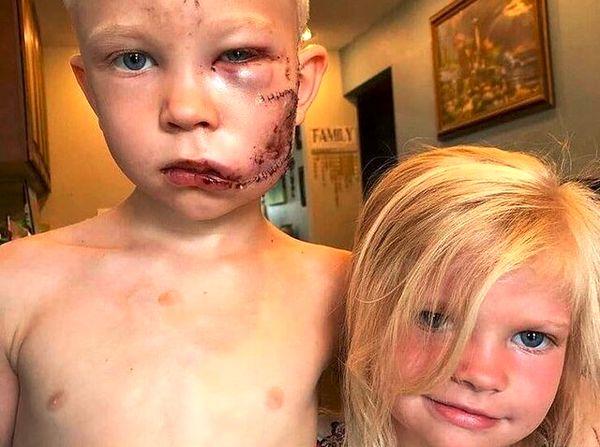 کودک قهرمانی که تصویرش هزاران بار بازنشر شد