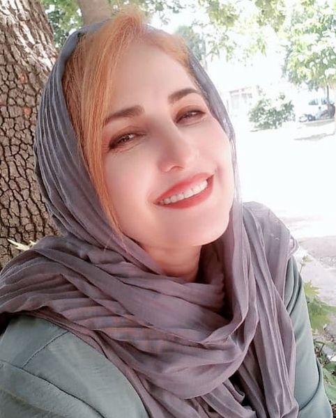 تغییر چهره فاطمه گودرزی + عکس