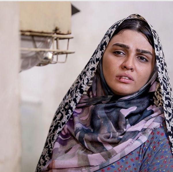 صورت زخمی خانم بازیگر جوان + عکس