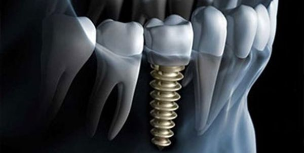 دندان مصنوعی سبب تحلیل استخوان فک میشود